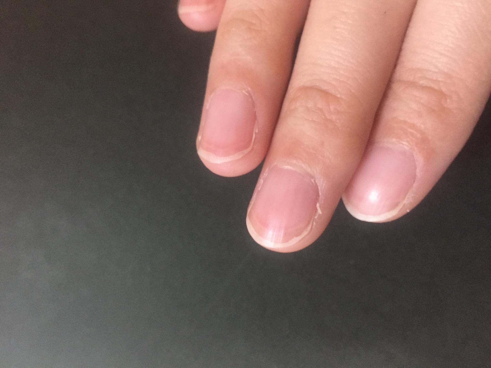 甘皮はささくれや爪の健康状態に関わる