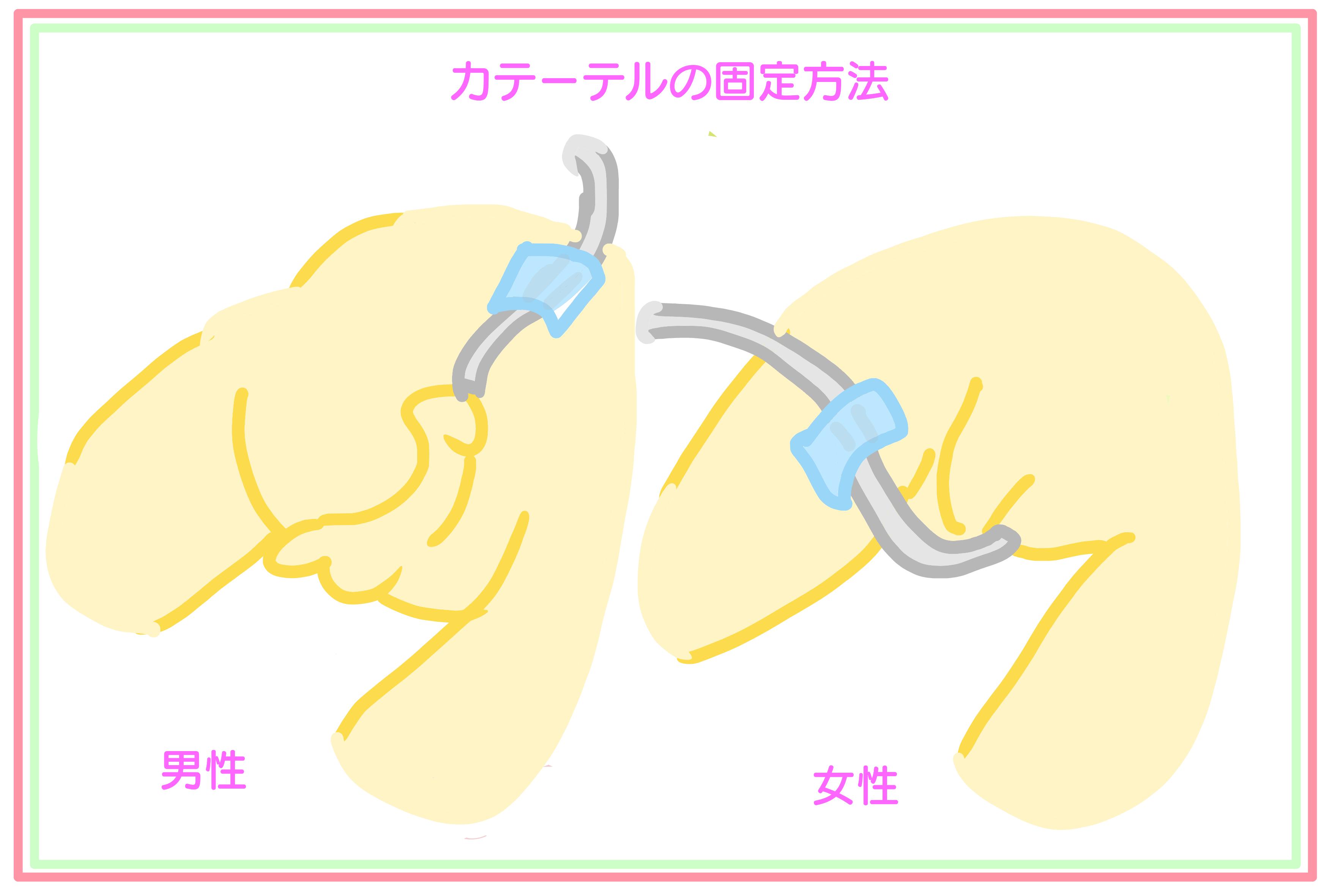 留置 カテーテル 膀胱 男性 用 製品