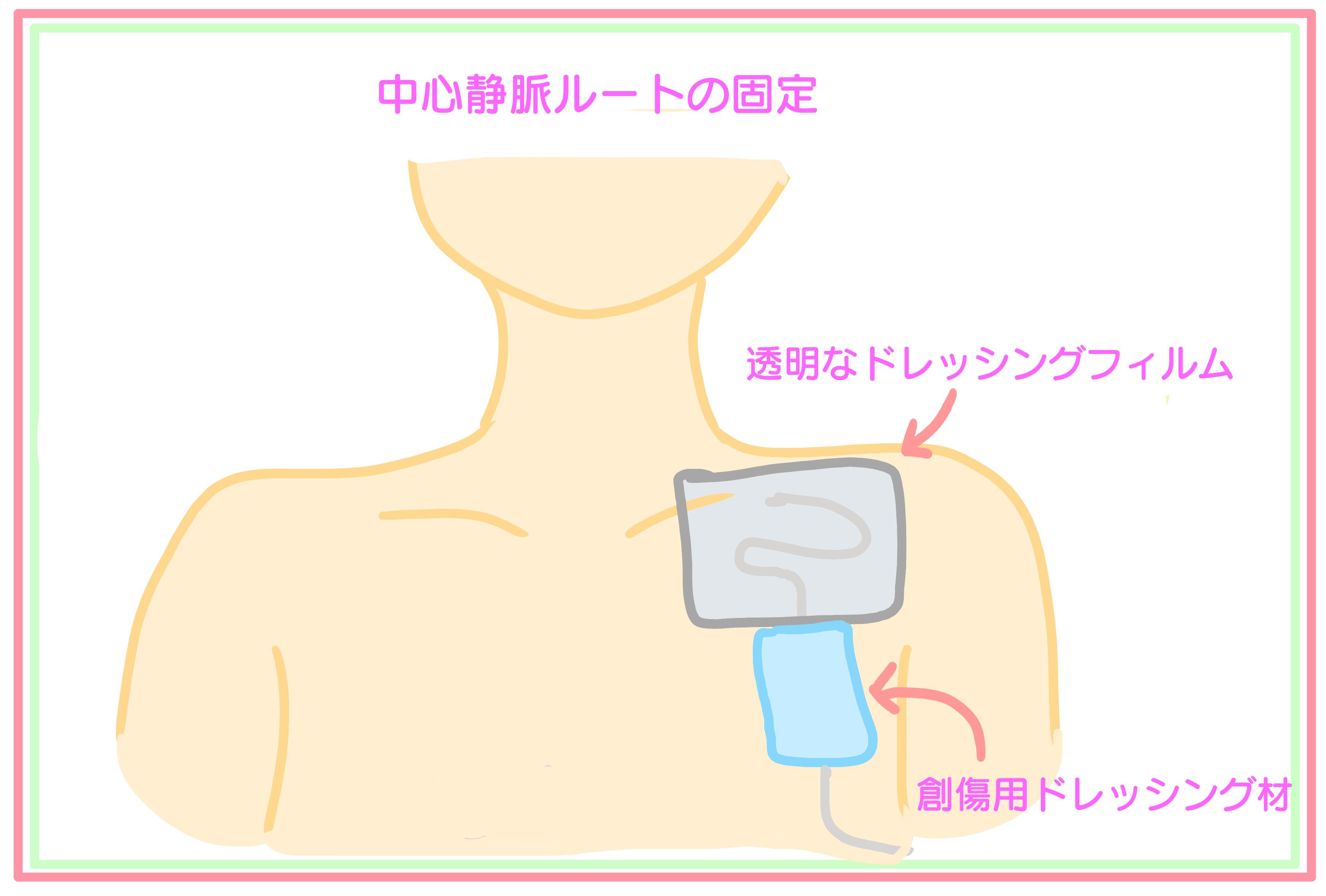 静脈 栄養 中心